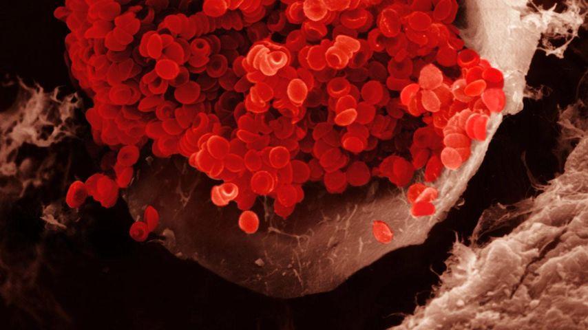 Rote Blutkörperchen in einem Blutgefäß. Erythrozyten haben eine bikonkave Form und stellen die grundlegende Form des Sauerstofftransports im Blut dar. REM X1000